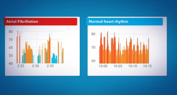 analisi salute smartwatch